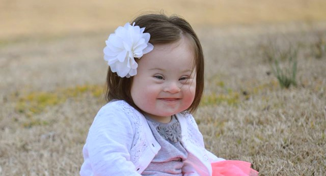 Mum with Down syndrome baby sends extraordinary letter to doctor who advised she abort